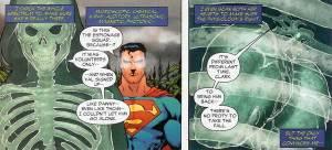 Mata Superman bisa tembus pandang